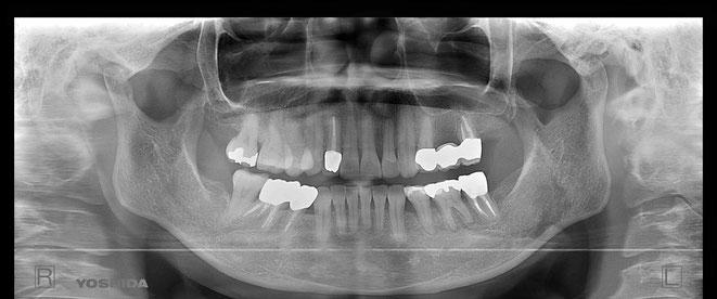 下顎頭の吸収 32