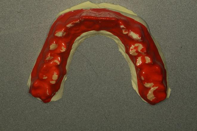 歯ぎしりの検査はブラックスチェッカーで行っております。