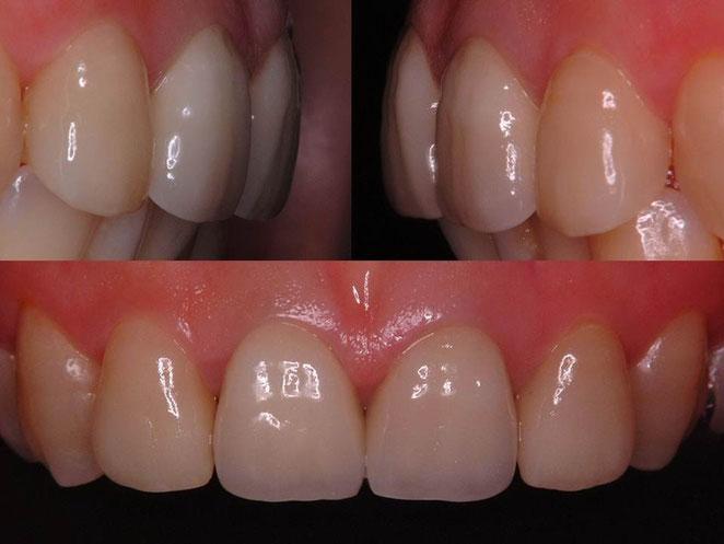 最終的な補綴物(差し歯)の写真です。上顎側切歯(真ん中の隣の歯)は、ラミネートベニアで修復しています。