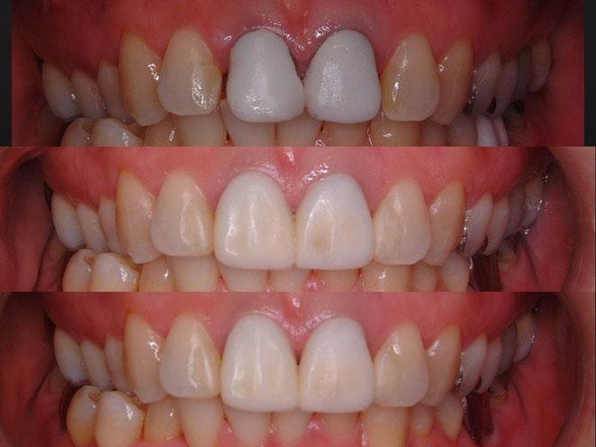 仮歯の修正をしながら、少しずつ歯肉の成熟を促します。