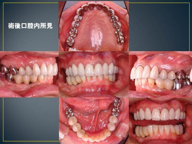 左上に2本、右下三本、左下3本インプラント植立。また前歯と奥歯のバランスを取るために、上あごの前歯も修復しています。