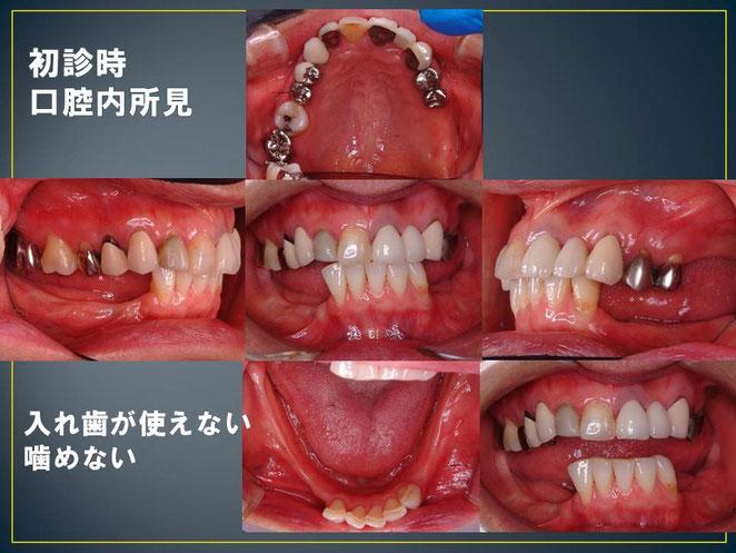 下の歯が抜けて無くなったが、入れ歯が使えなくて困っているとのことで来院されました。