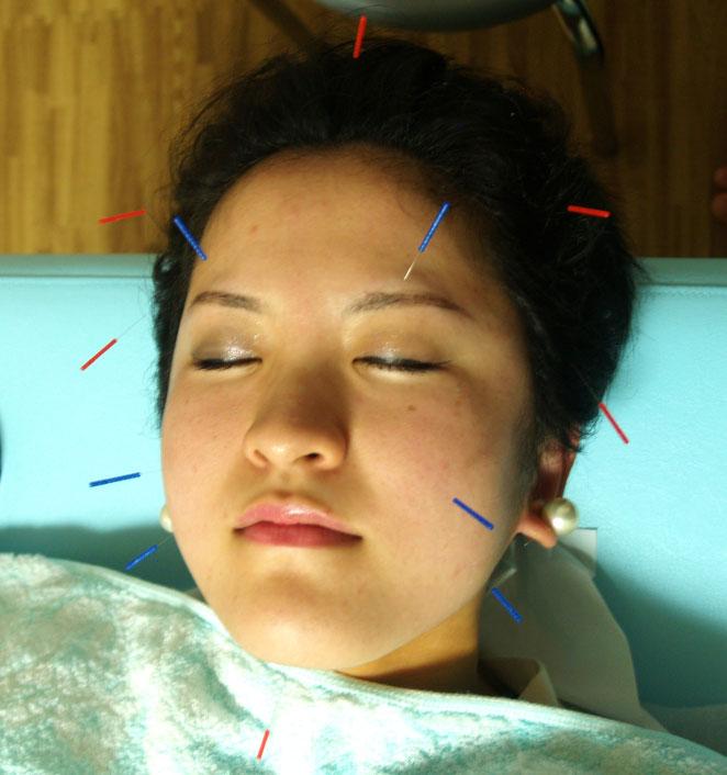 あじさい鍼灸マッサージ治療院 美容鍼の様子