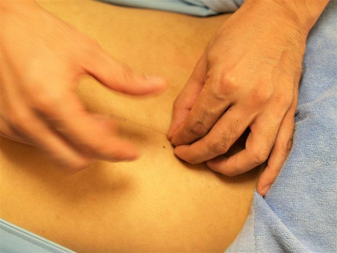 あじさい鍼灸マッサージ治療院 接触鍼の様子