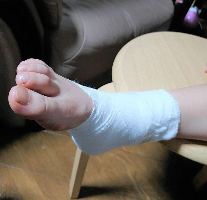 あじさい鍼灸マッサージ治療院 子どもの捻挫 包帯