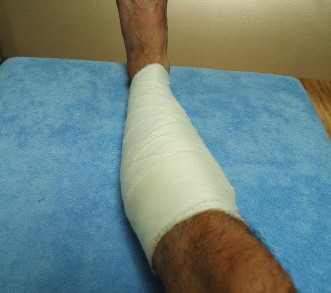 あじさい鍼灸マッサージ治療院 綿包帯による下腿の折転帯固定