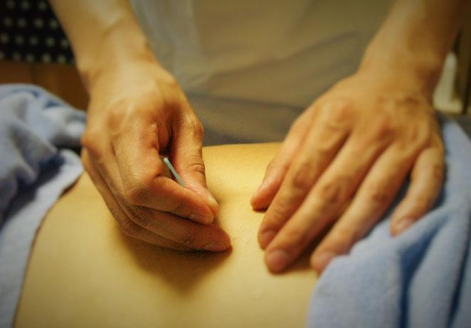 あじさい鍼灸マッサージ治療院 鍼を刺入している様子