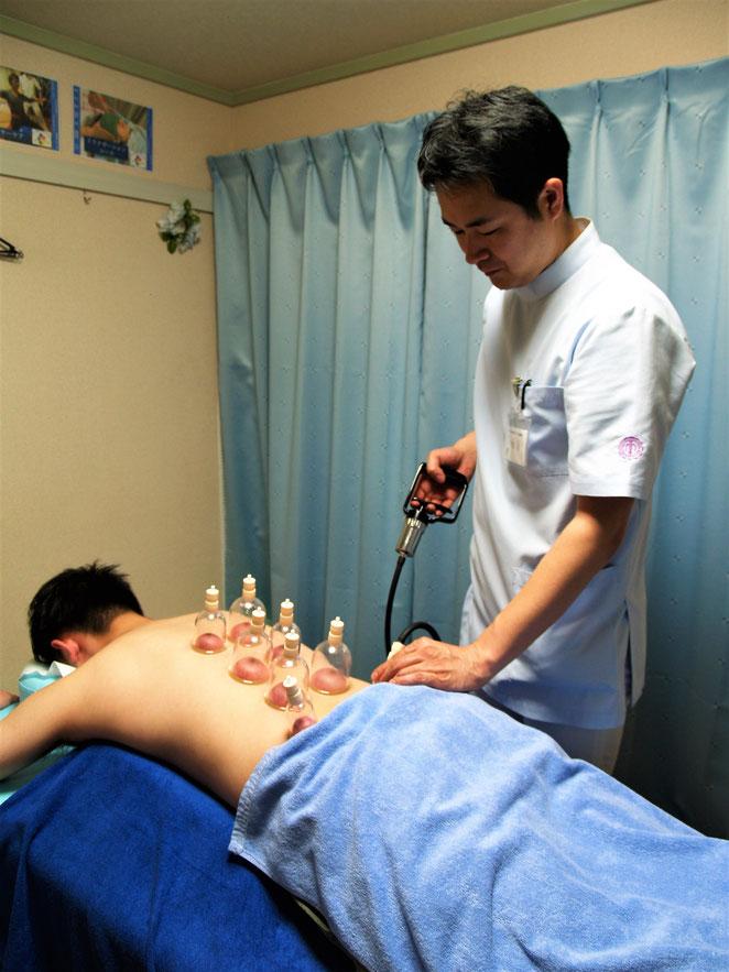 あじさい鍼灸マッサージ治療院 吸玉療法の様子