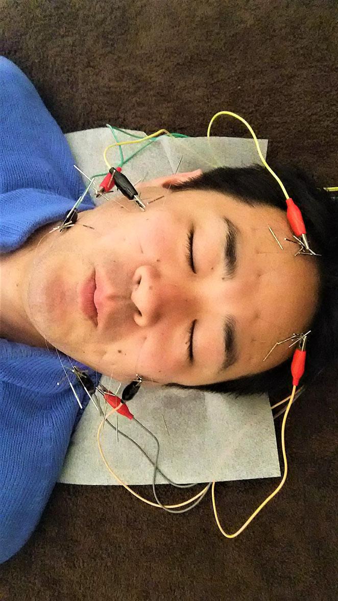 あじさい鍼灸マッサージ治療院 電気を流す美容鍼を初めて体験