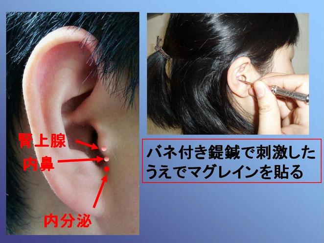 あじさい鍼灸マッサージ治療院 花粉症に使用する耳ツボ