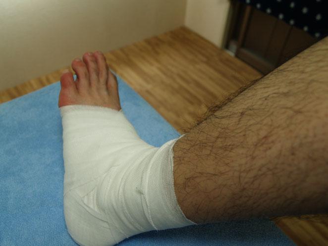 あじさい鍼灸マッサージ治療院 足首の包帯固定