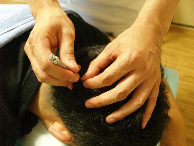 あじさい鍼灸マッサージ治療院 鍉鍼の様子