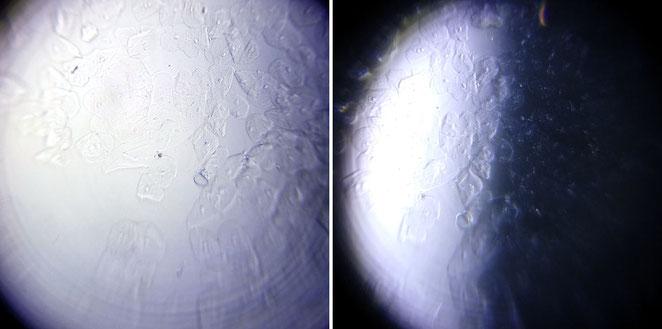 Gegenüberstellung der Hellfeld- und Dunkelfeldbeleuchtung beim Foldscope.