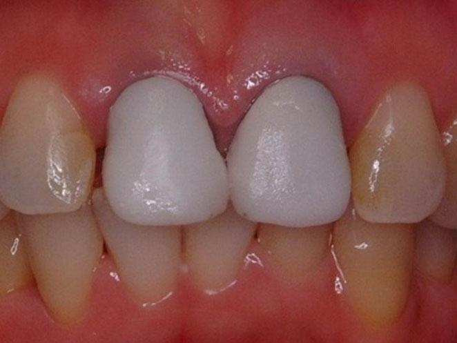 上の前歯の差し歯の再製作を主訴に来院された方です。