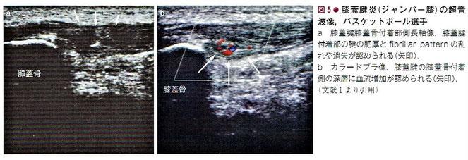 膝蓋腱炎(ジャンパー膝)の超音波像