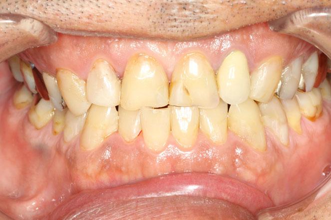歯軋りで歯の先端がすり減ってしまった場合の知覚過敏 治療前