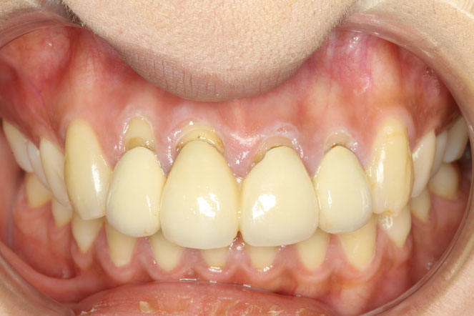 歯茎が下がってしまっている場合の知覚過敏治療 治療前