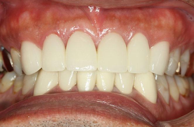 歯軋りで歯の先端がすり減ってしまった場合の知覚過敏 オールセラミックで治療後