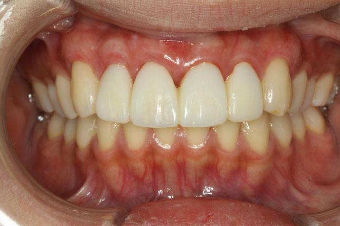 歯茎が下がってしまっている場合の知覚過敏治療 歯茎の再生治療後