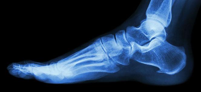 Röntgenaufnahme des menschlichen Fußes