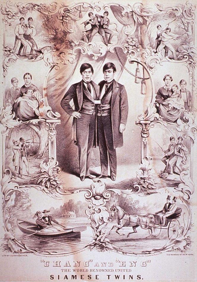 「世界的に有名な合衆国のシャム双生児 チャン&エン」1860年
