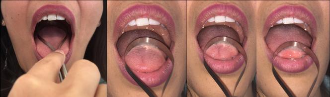 Anwendung Zungenschaber LinguaFreshOne, beste Hilfe bei Mundgeruch