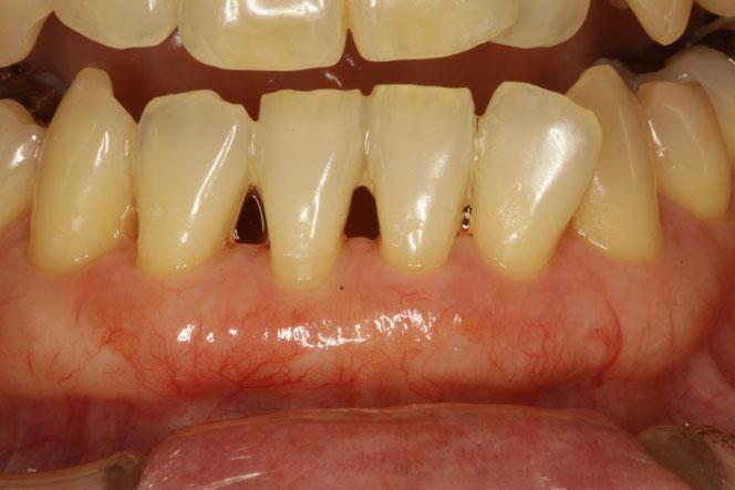 歯と歯の間の骨が歯周病などで吸収してしまっている場合は、歯と歯の間の部分の歯茎に関しましては、回復が期待できません。