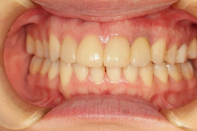 歯茎再生 No.63 前歯のインプラントの歯茎を回復したケース