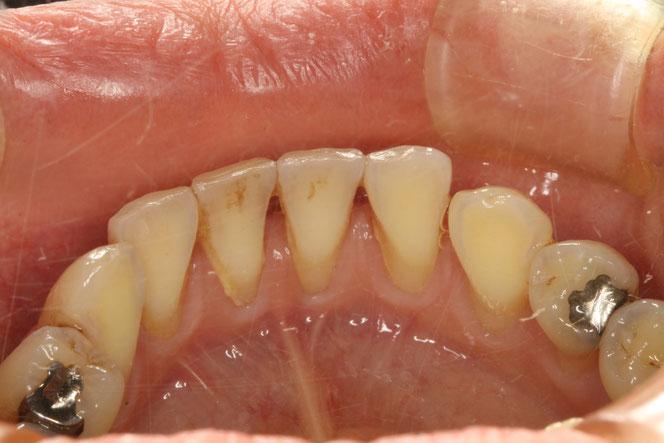 下の歯の前歯の裏側の歯茎が下がってしまう