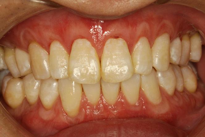 全体的に歯茎が下がってしまった時の歯茎の再生治療