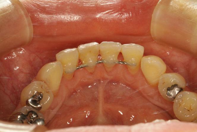 下の歯の前歯の裏側の歯茎が下がってしまう時の歯茎再生治療
