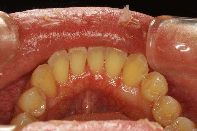下の前歯の裏の歯茎の再生。歯茎の位置が回復し、厚みがましています。
