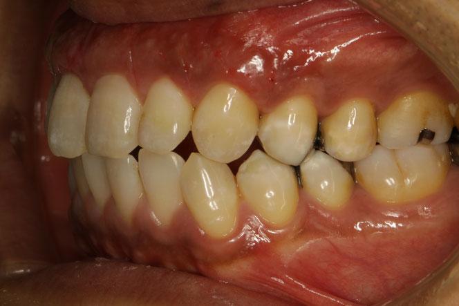 初期の歯ぐきの退縮の治療
