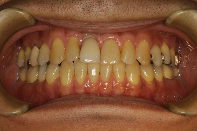 インプラント部の歯茎が下がってしまったケース 治療前