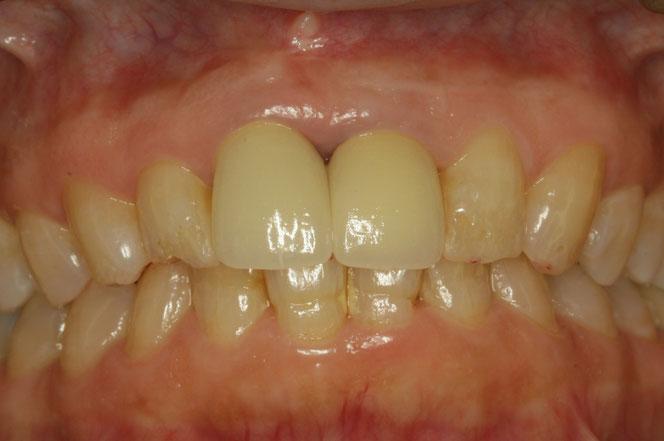 新しい差し歯と歯茎の再生