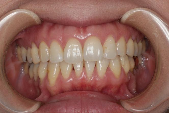 下の前歯と奥歯の歯茎再生 治療前