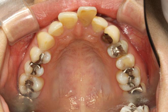 歯の神経を取る場合