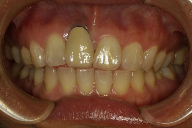 No60 インプラントの歯茎が下がりセラミックが長いのを直したケース