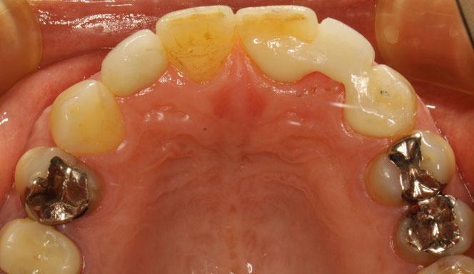 歯をあまり削らないオールセラミック ブリッジ法