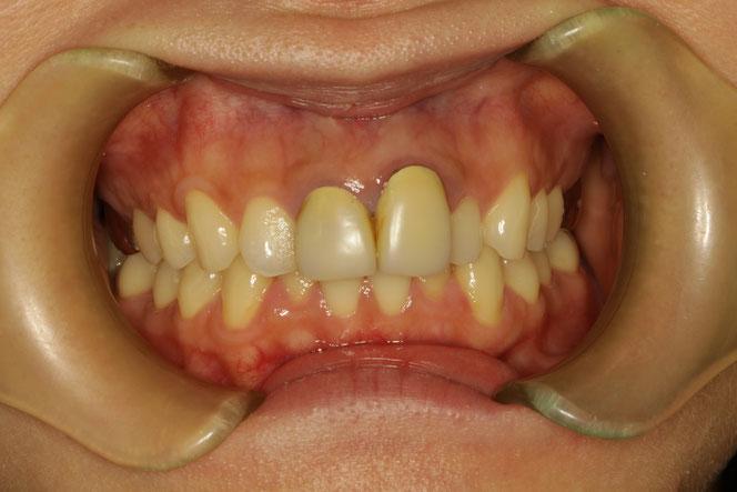 差し歯の長さを合わせる歯茎の再生治療