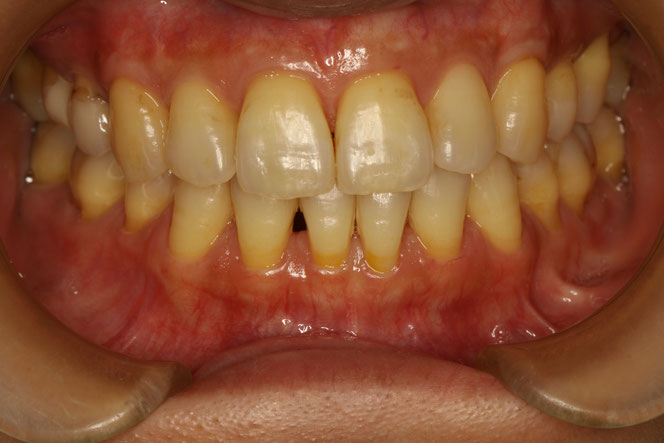 矯正後に歯茎が下がってしまって歯の根っこが露出してしまったケース
