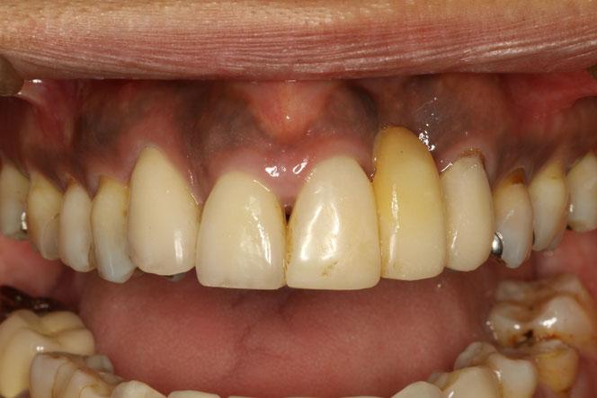 ブリッジの歯茎が窪んだ時の歯茎再生
