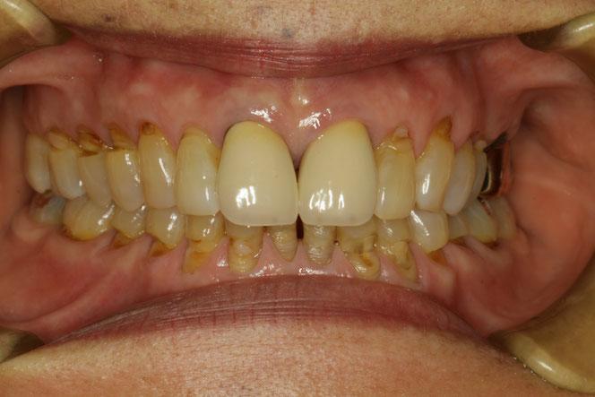 全体的に歯茎が下がり、露出した歯の根っこが削れてしまっています。