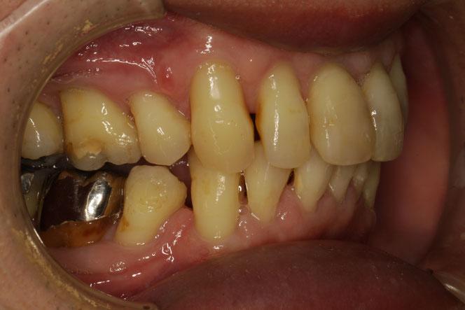 歯周病と歯ぐき再生