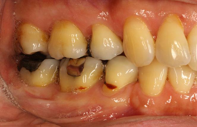 歯ぐきの退縮と虫歯
