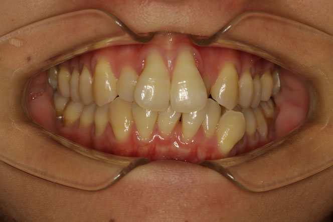 歯並びが悪い場合の歯ぐきの退縮
