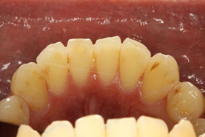下の前歯の裏の歯茎の退縮
