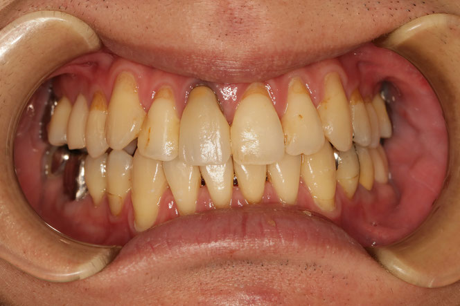 歯茎の再生治療例 No,66 歯茎の再生治療と差し歯の治療