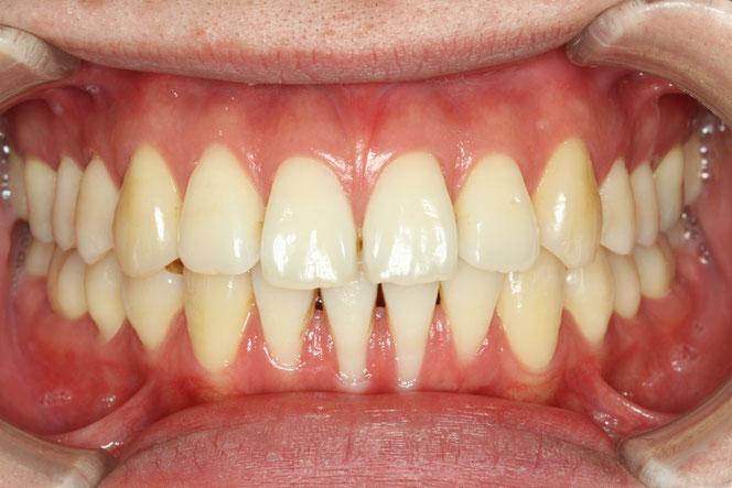 歯ぐきの再生治療 治療前