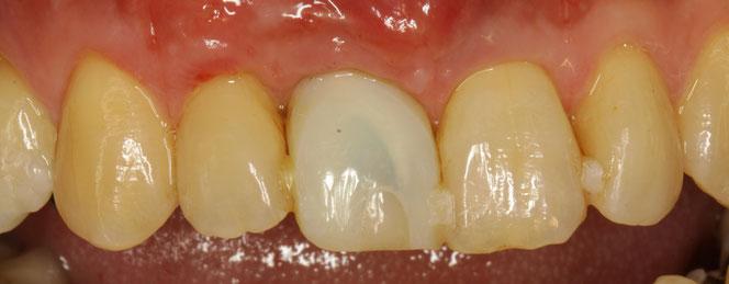 インプラントの歯ぐきの再生治療